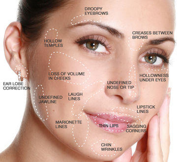 HYALURONIC areas
